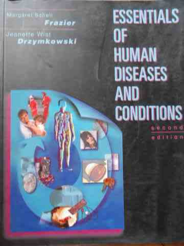 essentials of human diseases and conditions                                                          m. schell frazier, j.w. drzymkowski